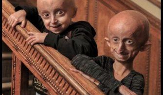 Progeria Nedir?