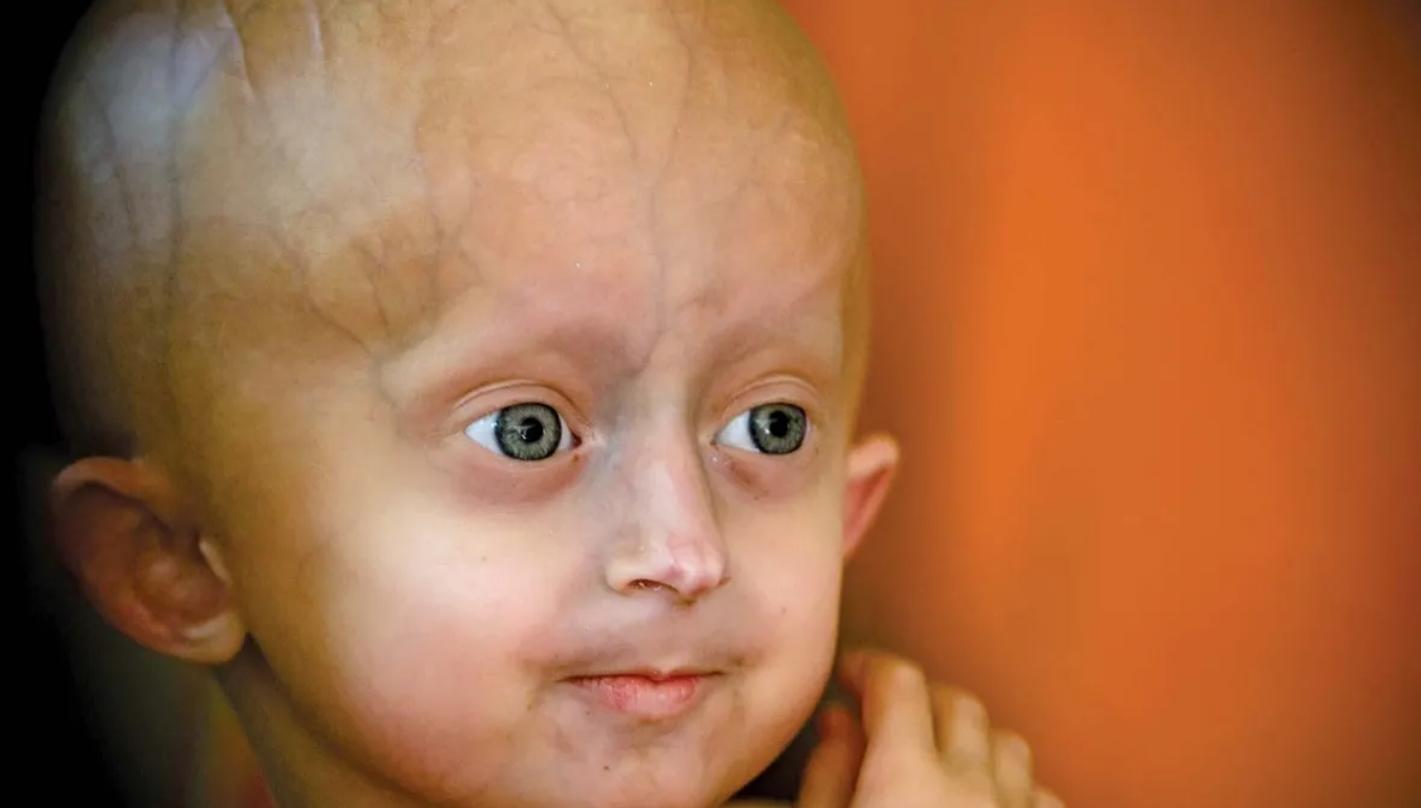 progeria-hastaligi-sendromu-nedir-neden-olur (1)
